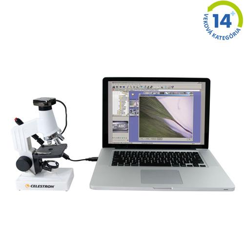 Digitálny mikroskop - 600x